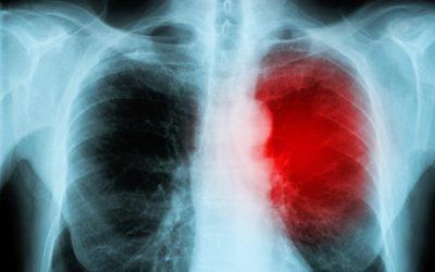 Krebsimmun-Therapie kann den Herzmuskel schädigen